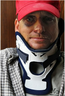 """Knockout Game"" victim Matt Quain"